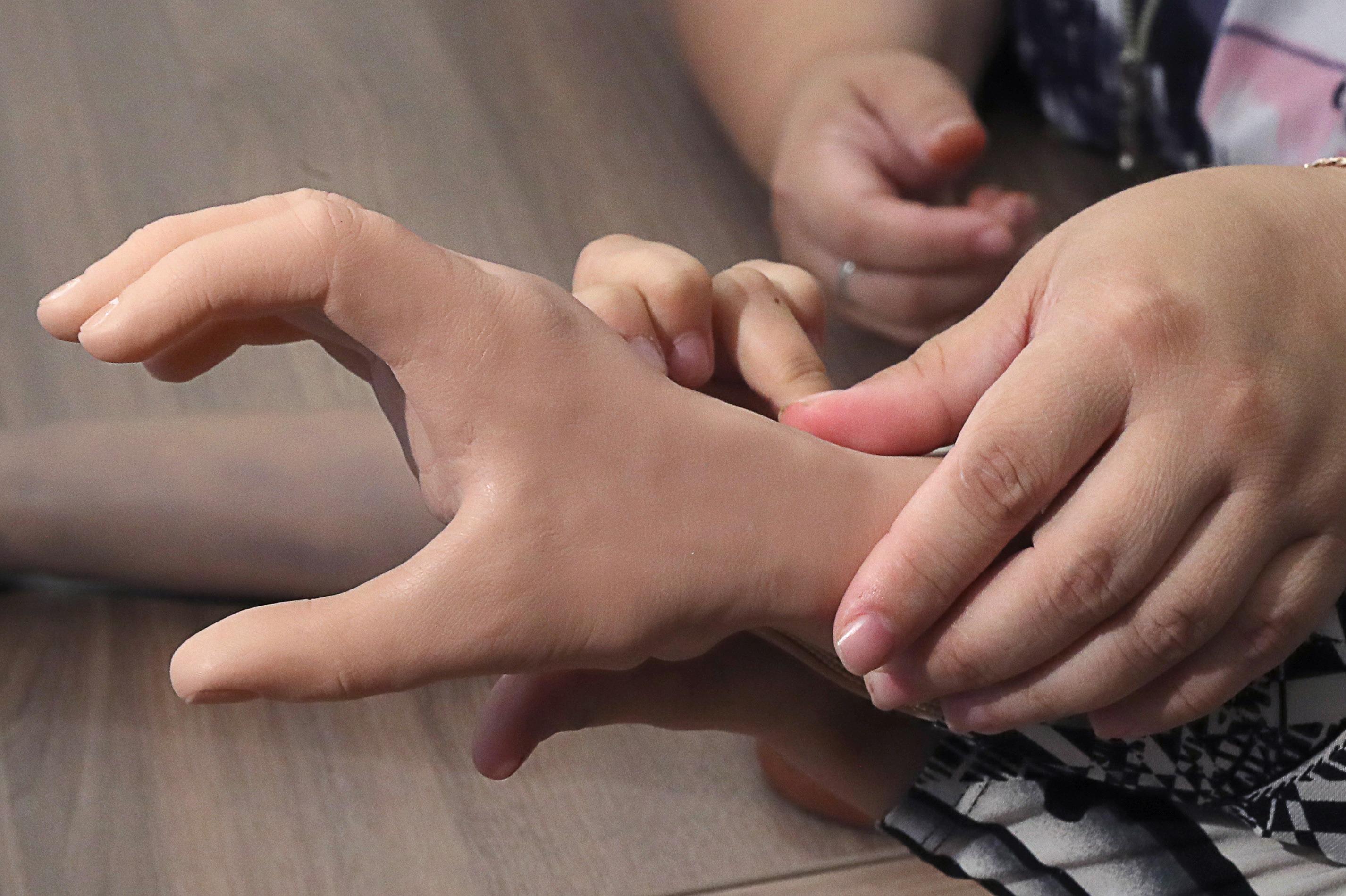 Избитой девченке из Ингушетии проведут реконструктивные операции на правой руке
